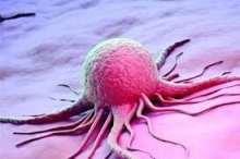 سرطان پوست آقايان بيشتر مراقب باشند