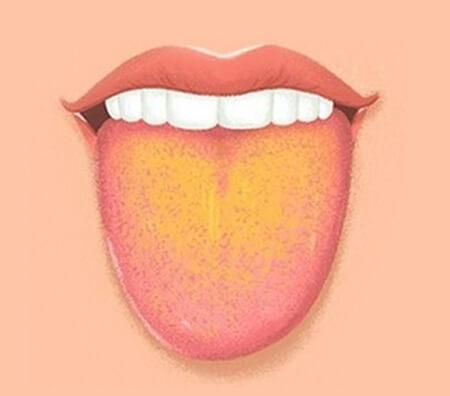 علل زبان زرد ، زردی زبان