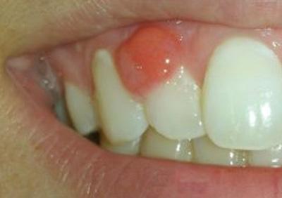 تومور خوشخیم، بیماریهای دهان و دندان