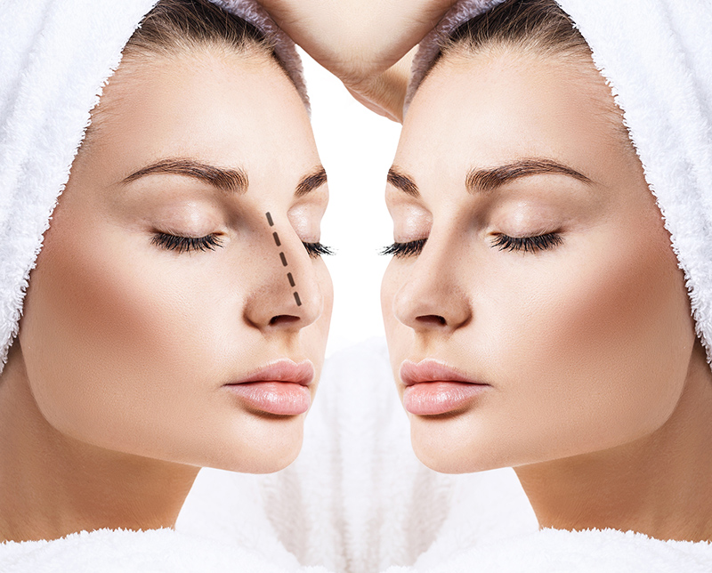 ?Does rhinoplasty have pain