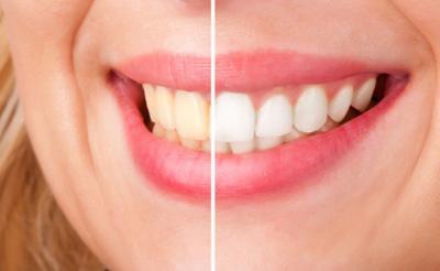 پوسیدگی و عفونت دندان، جرم گرفتن دندان ها