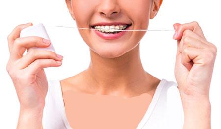نخ دندان مخصوص ارتودنسی، نحوه کشیدن نخ دندان ارتودنسی