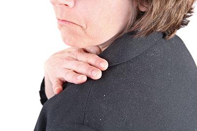 علت شوره سر,داروی شوره سر,درمان گیاهی شوره سر