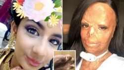 شامپوي ضد شپش که باعث سوختن صورت دختر شد