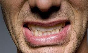 درد در ناحیه آرواره از علائم شایع دندانقروچه
