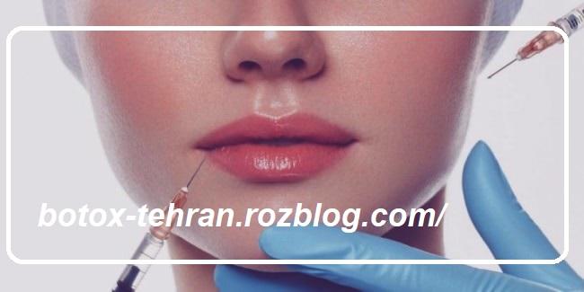 بهترین دکتر برای تزریق بوتاکس در تهران