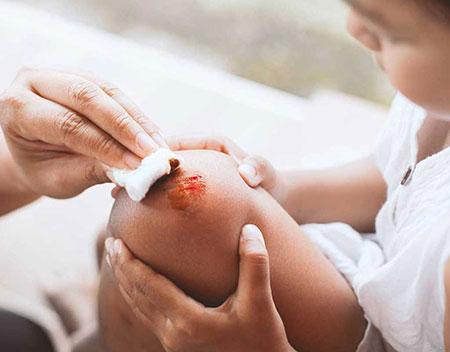 عفونت زخم،پیشگیری از عفونت زخم