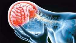 چيزهايي که با سکته مغزي ارتباط دارند