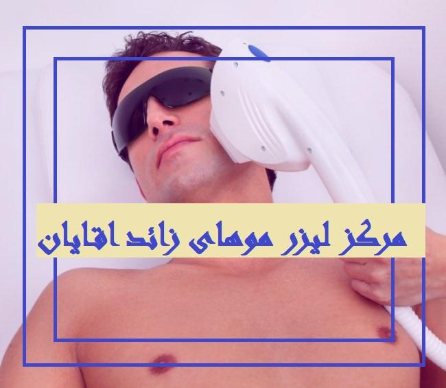 لیزر موهای زائد اقایان در تهران