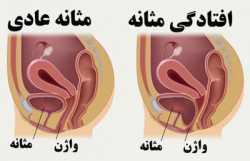 علائم و درمان افتادگي مثانه در زنان