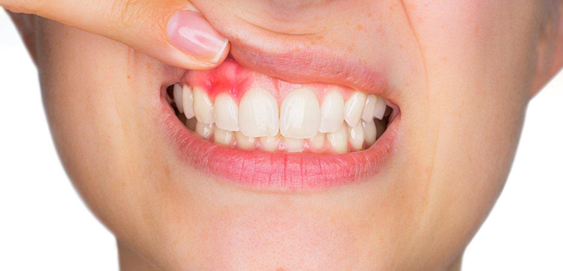 درمان آبسه دندان با نشاسته
