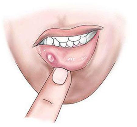 علل موکوسل, پیشگیری از موکوسل دهانی, ضایعات سقف دهان
