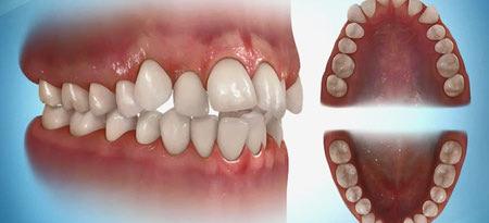 کراودینگ دندانها, لمینت دندان های نامرتب, کشیدن دندان برای حل مشکل کراودینگ