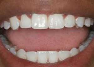 آیا جرمگیری دندانها کار درستی هست؟