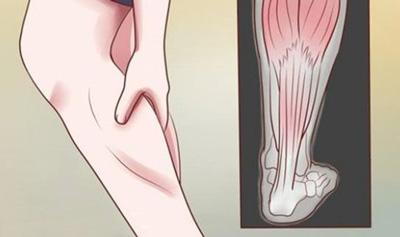 گرفتگی عضلات پا, درمان گرفتگی عضلات پا