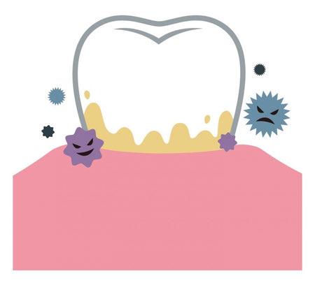 عکس تارتار دندان, برداشتن تارتار دندان, تارتار شدن دندان