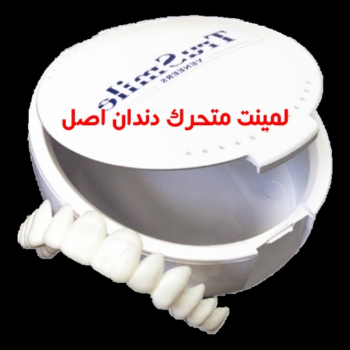 قیمت کامپوزیت متحرک دندان