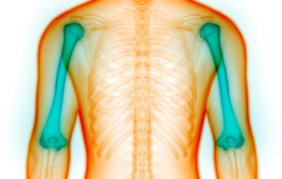 پیشگیری از پوکی استخوان,نشانه پوکی استخوان