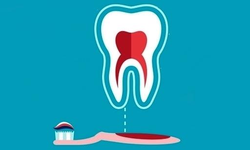 چکار کنیم زردی دندان از بین برود