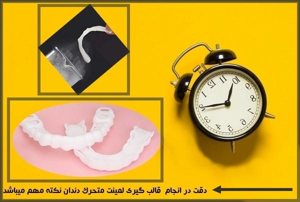 طریقه نصب لیمنت متحرک دندان