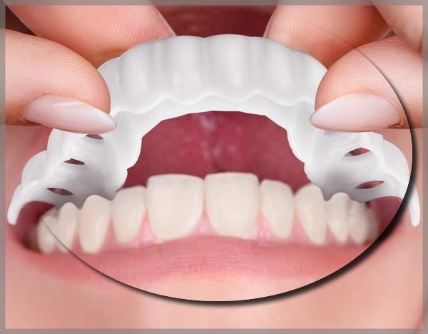 لمینت متحرک دندان