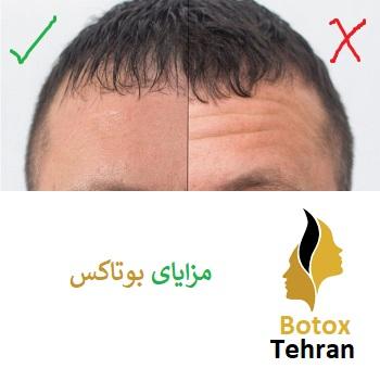 بوتاکس تهران
