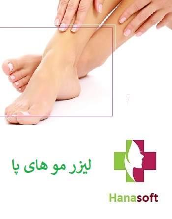 قیمت لیزر موهای ازئد در اصفهان