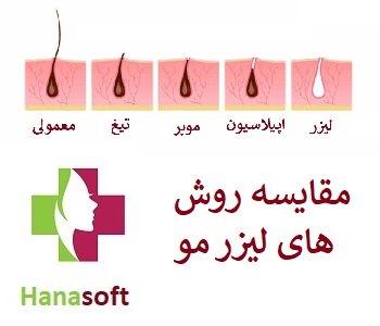 روش های از بین بردن مو اصفهان